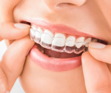 Benefits of Invisible Braces